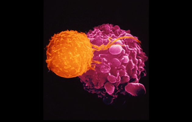 Killer T cells (orange) are recruited to attack malignant cells (mauve) in the viral-based cancer therapy T-VEC.