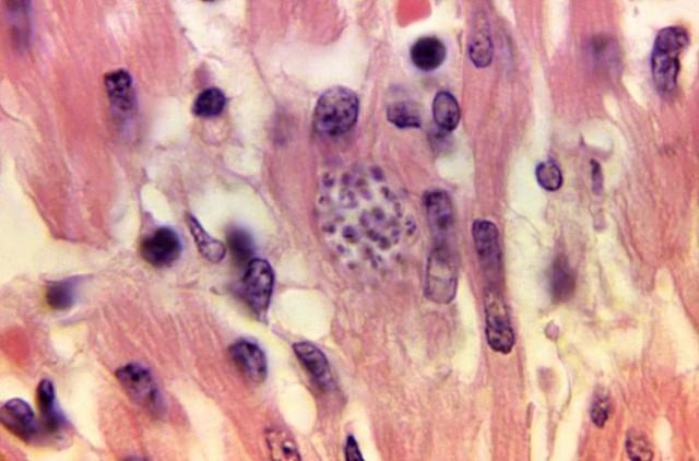 Trypanosome-in-heart-tissue-CDC-470lores_0-e1443711028242